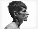 Jeffris Elliott: Blind Man Profile